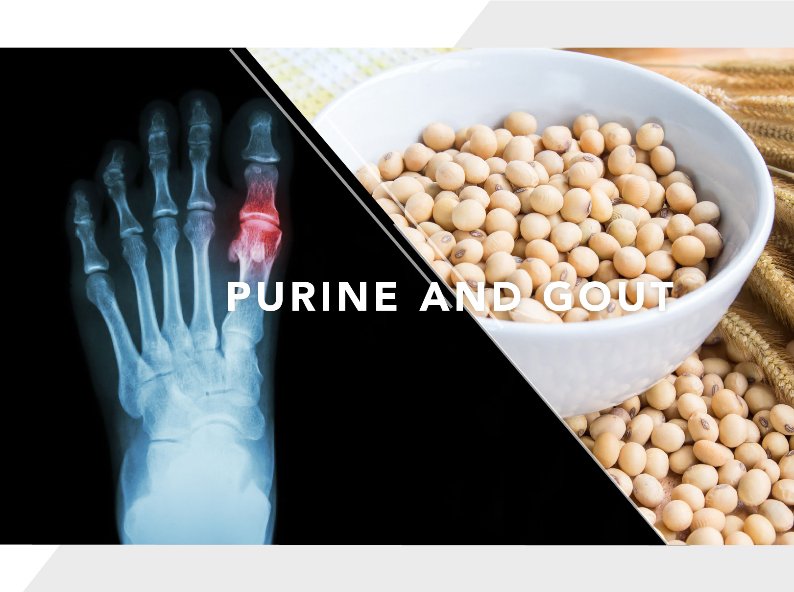 Purine and Gout